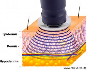 ultraschallgerät zur kosmetik